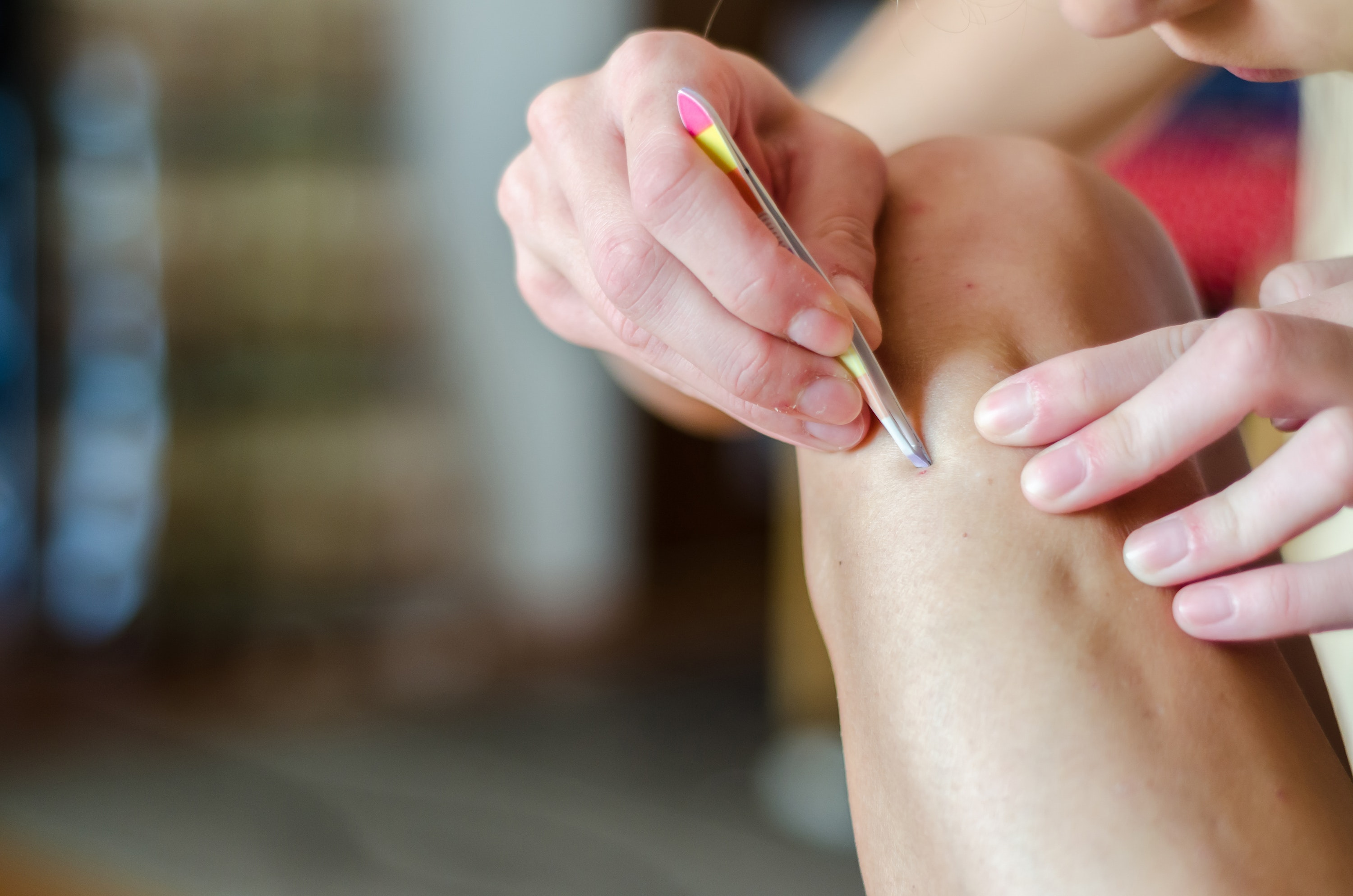 How to Treat and Avoid Ingrown Hairs This Summer