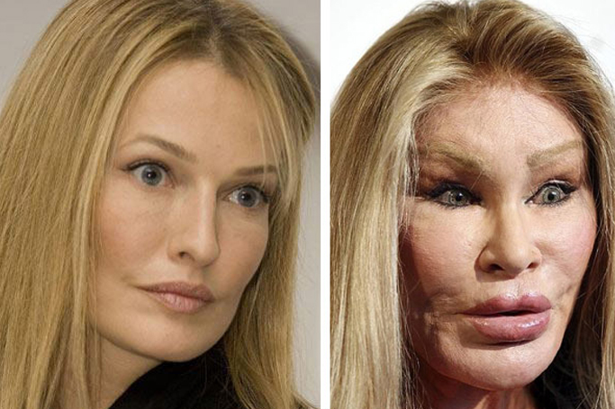 celebrity plastic surgery fails